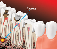 If tooth decay is not treated, it can cause an abscess and can lead to serious infections
