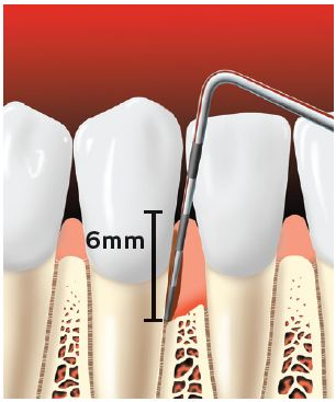 Periodontal probe showing a pocket forming between the tooth root and the gums