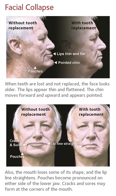 Facial Collapse with and without tooth replacement