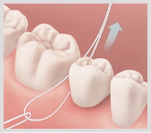 Dental Bridges: What Is a Dental Bridge? | Aspen Dental