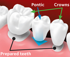 pontic tooth and crowns placed on the prepared teeth