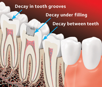early tooth decay in tooth grooves, in between teeth and under fillings