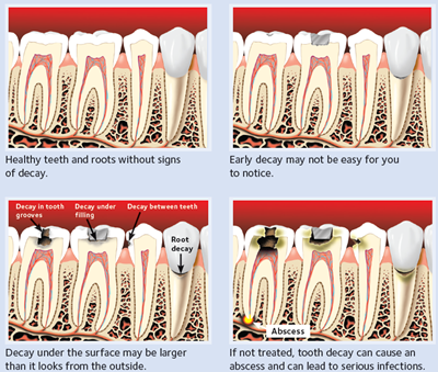 Diagram of the process of tooth decay