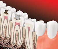 decay under the tooth surface may be larger than it looks from the outside