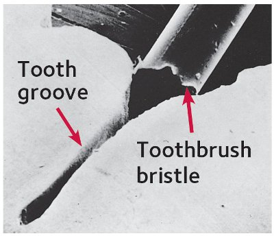 tooth brush bristle not reaching a groove where a cavity can form