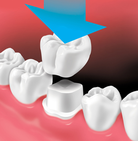 Crown is placed over prepared tooth
