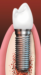 Dental implant and crown.