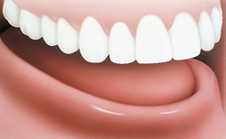 gum line before an implant supported denture