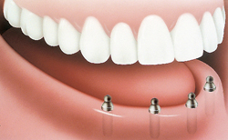 implant posts installed before the denture