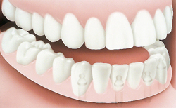 after an implant supported denture procedure