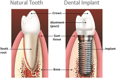 Dental Implants Aspen Dental