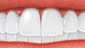 Missing tooth replaced by a dental implant.