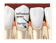 Inflamed gums and tartar