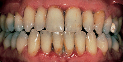 teeth with periodontis on the gum line and bone