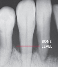 x-ray showing periodontal bone loss