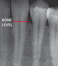 xray showing periodontal bone loss
