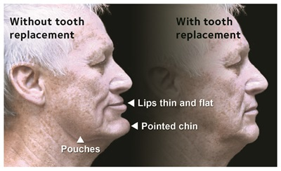 Mouth without and with tooth replacement