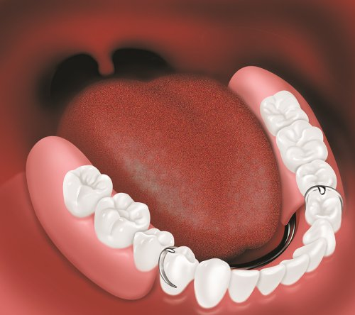 partial denture in the mouth with rest seats on two teeth