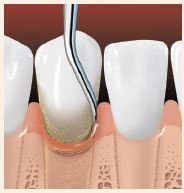 Root planing smoothes the tooth root