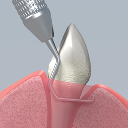 preventing periodontal disease through tooth scaling which removes plaque and tarter buildup