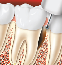 grafting diseased tissue from around a tooth