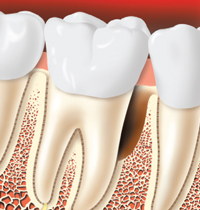 a tooth graft after the bone has been reshaped