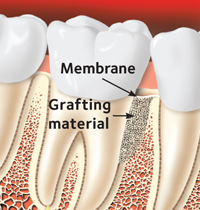 grafting material placed over a damaged tooth