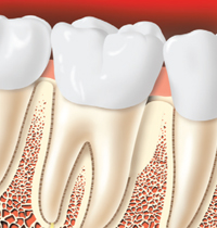 healing period after a tooth graft