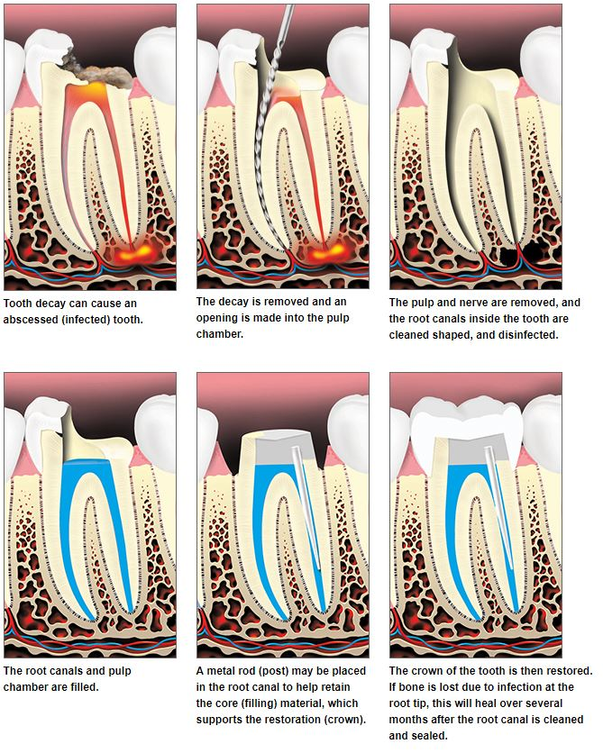 Steps of tooth decay diagram