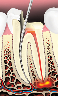 a root canal procedure where the crown is drilled and tooth pulp removed