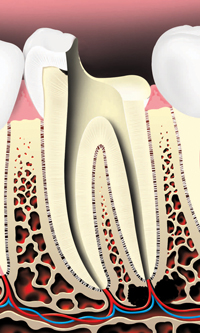 cleaning a root canal after the pulp is removed