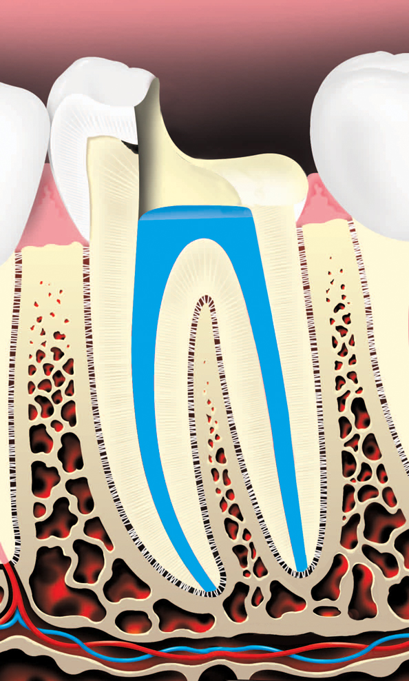 root canal procedure where the pulp chamber is filled