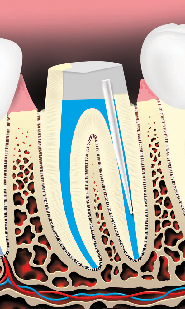 root canal procedure where a metal or plastic rod is placed is placed to retain the core