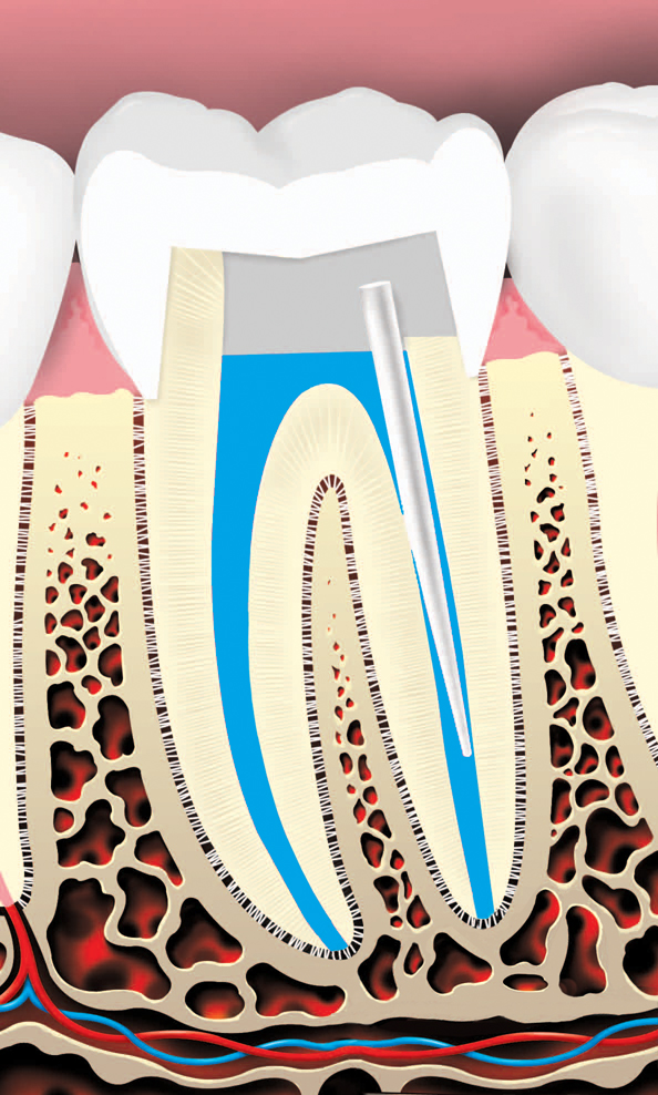 root canal procedure where the tooth is restored using a crown or filling