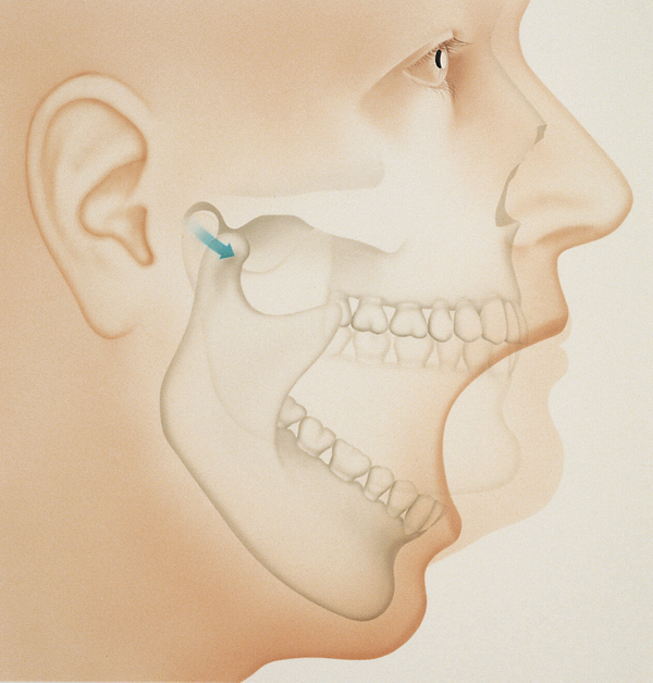 temporomandibular  (TMJ) face and jaw joint