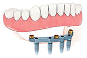 4 Bar Dental Implant