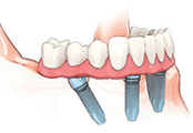 4 Dental Implant