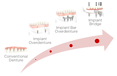 Dental Implant Quality of Life