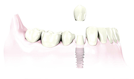 New Tooth on Dental Implant