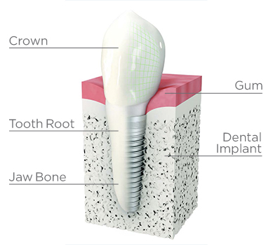 tooth implant screw