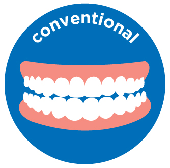 upper/lower conventional denture costs aspen dental