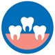 tooth extraction costs Aspen Dental